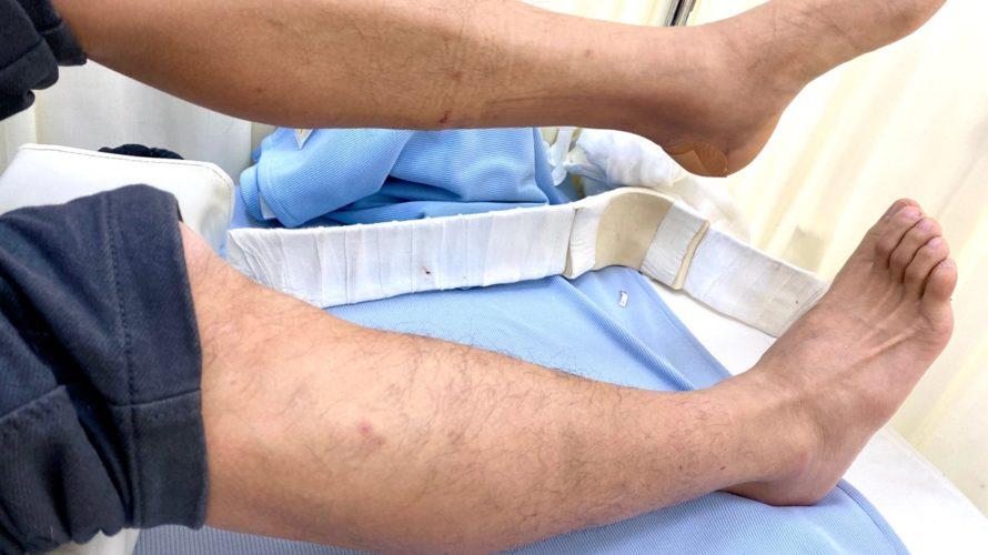 【ほっそり】見るも無残な足の細さよ……断裂から3週間半の様子がこちらです【40歳アキレス腱断裂シリーズ】