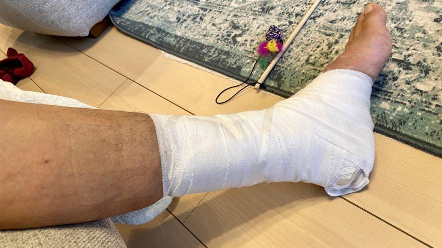 【日記】怪我から6週経過でシーネ固定は終了! 筋肉の衰えはさらにエグいことに【40歳アキレス腱断裂シリーズ】